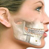 implante um novo sorriso