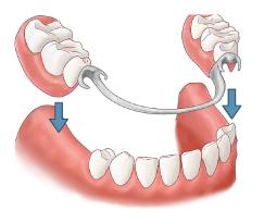 roach - Implantar Clínica Odontológica