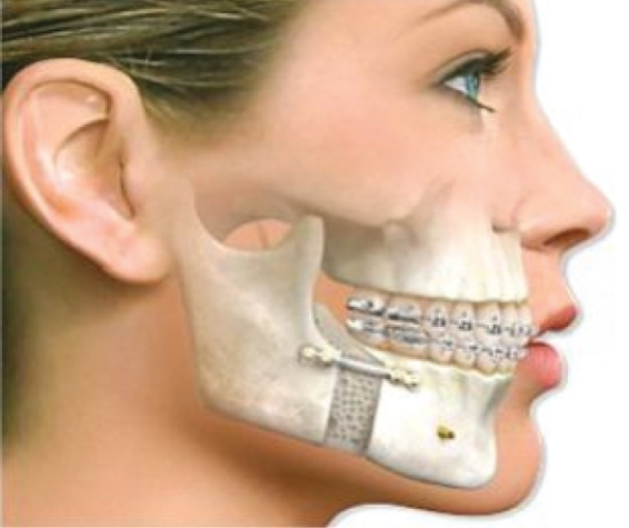 Implantar Odontologia