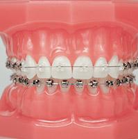implante um novo sorriso ortodontia