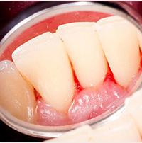 implante um novo sorriso periodontia