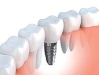 Implantar Clínica Odontológica
